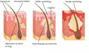 verloop-ontstaan-acne