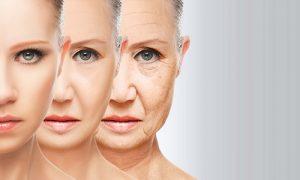 huidverbetering-specialist-blog-stress-en-huidveroudering-500-x-300